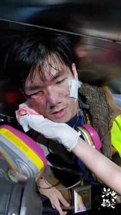 浸大記者遭射擊眼部 港今日發起聲援