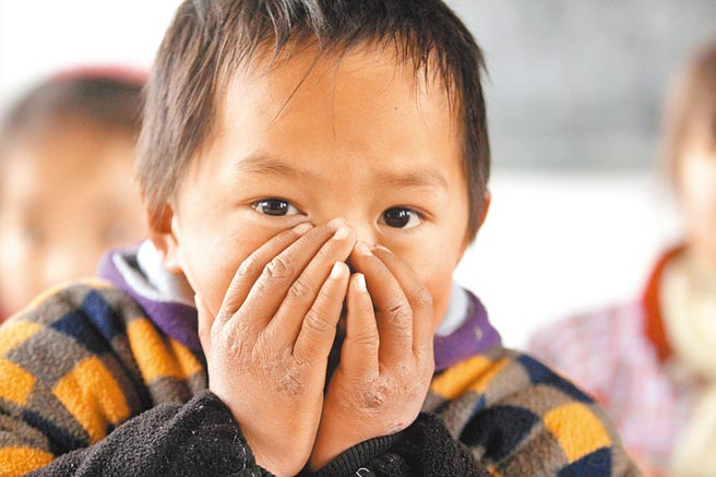 安徽省固鎮縣油坊小學冬天沒有電燈、設施簡陋的孩子們手上、臉上都長有不同程度的凍瘡。(中新社資料照片)