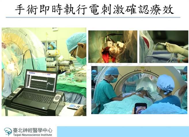 61 歲張先生罹患帕金森氏症,經雙和神經內外科團隊採勵羅莎手術機器人(ROSA)執行帕金森氏症「深部腦刺激手術」恢復正常生活。(雙和醫院提供)