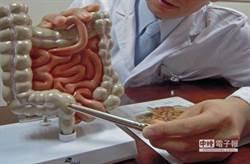 大腸息肉變成癌 7個致命習慣害的