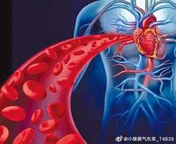 心血管病患者 運動三錦囊