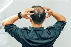 禿男訪增毛站求髮 1年變化網驚呆