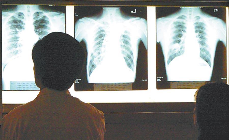 武漢市開展疾病監測,發現病毒性肺炎病例27例。圖為示意圖(本報系資料照片)