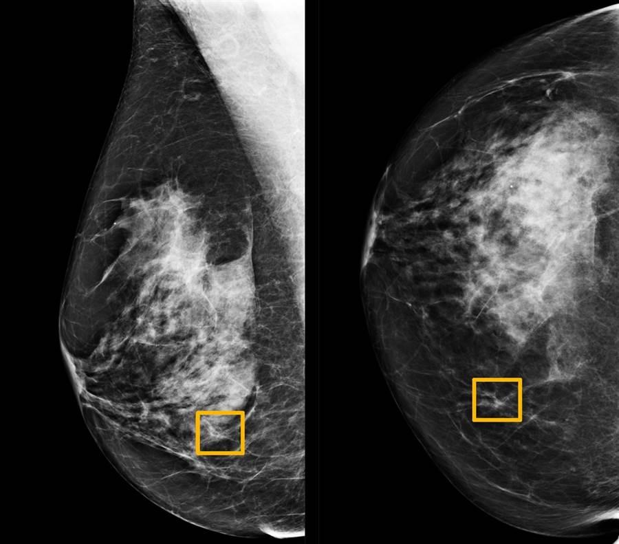 新研究顯示,AI系統從乳房X光片中判讀出乳癌的準確度比醫生還好。(圖/路透社、美國西北大學)