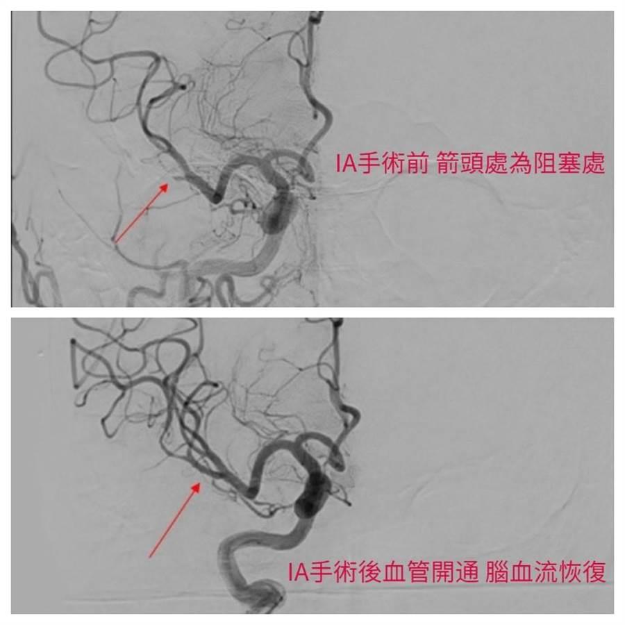 陳伯伯經過動脈取栓術(IA thrombectomy)開通阻塞血管成功將血栓取出。(圖/恩主公醫院提供)