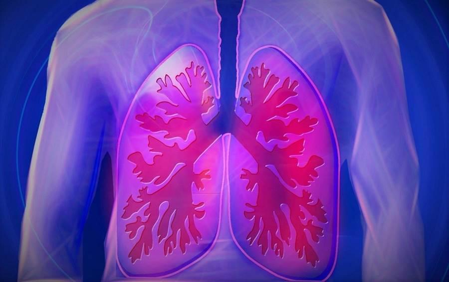 每年有1萬3千多人聽到醫師宣判「你得了肺癌」;連續7年,肺癌居國人第一奪命癌。(圖/pixabay)