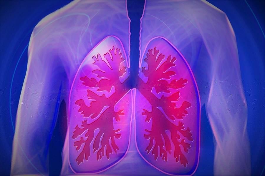 武漢不明肺炎病原體初步判定為新型冠狀病毒,推測是由動物傳到人身上,人傳人能力不強。(圖/pixabay)