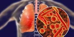 武漢市新型肺炎增至2死 69歲老翁發病後2週病逝