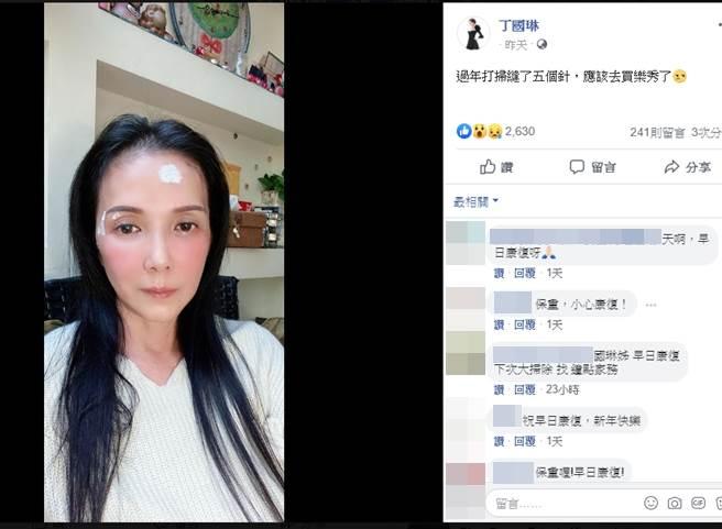 丁國琳分享破相照片。(圖/翻攝自丁國琳臉書)