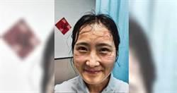 武漢肺炎/武漢護士滿臉防護罩勒痕!網淚讚:最美戰士