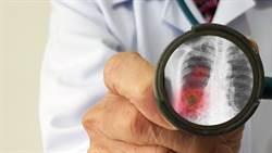 西班牙及英國各新增1件新冠肺炎病例