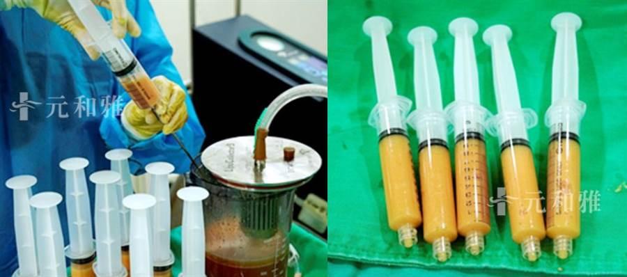 自體脂肪移植手術先經抽脂後離析出活性高的脂肪 再回填隆乳或豐頰 (取自元和雅官網)