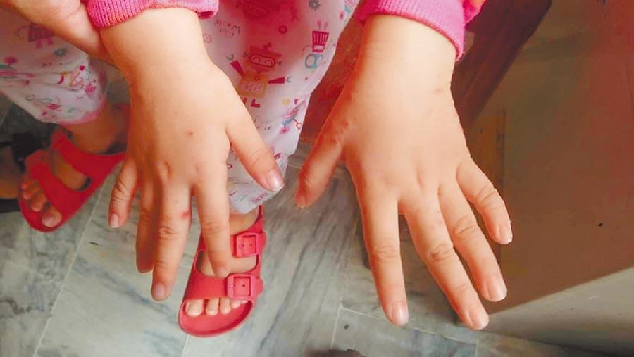 台南市政府衛生局公布本周新增今年首例腸病毒重症確診個案,北區2歲女童感染腸病毒71型,現已康復出院。圖與個案無關。(翻攝照片/曹婷婷台南傳真)