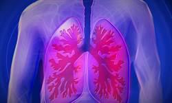 新冠肺炎高風險群 5種人要注意
