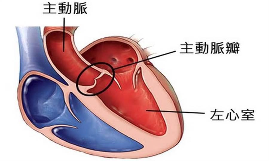主動脈病變是心臟瓣膜手術常見主因。(圖片來源:取自台灣心臟外科研究發展協會)