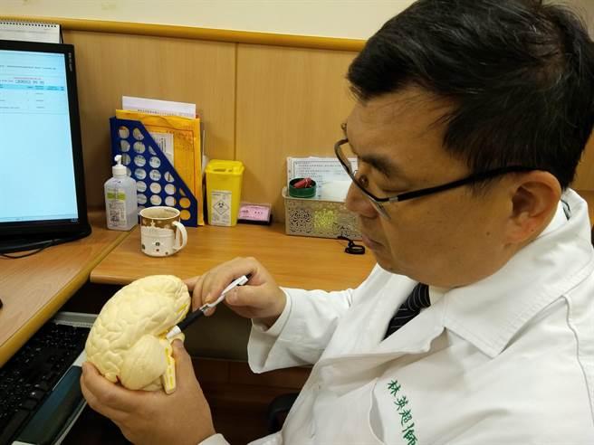 台中慈濟醫院外科醫師林英超說明脂肪包覆三叉神經位置。(王文吉攝)
