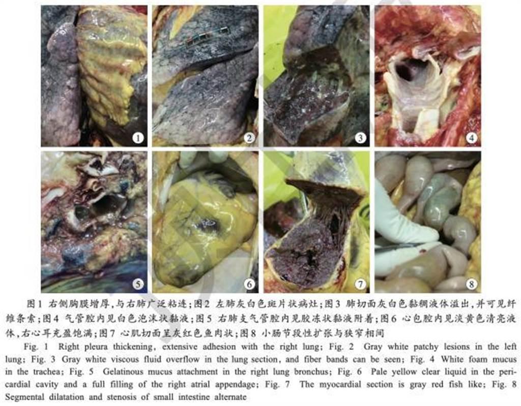 大陸的《法醫學雜誌》發表首份新冠肺炎死者的解剖報告。(取自澎湃新聞)