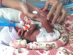 弱勢兒少醫療補助 台南早產兒受惠多