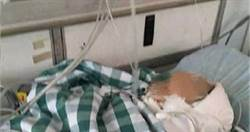 天外飛砸一塊磚 1歲男嬰頭骨凹陷被宣告腦死