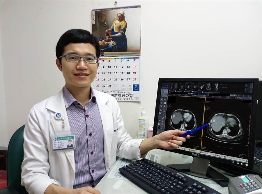 大千綜合醫院肝膽腸胃科醫師林裕鈞表示,電燒療法為治療肝癌的另一種選擇。(大千綜合醫院提供/何冠嫻苗栗傳真)