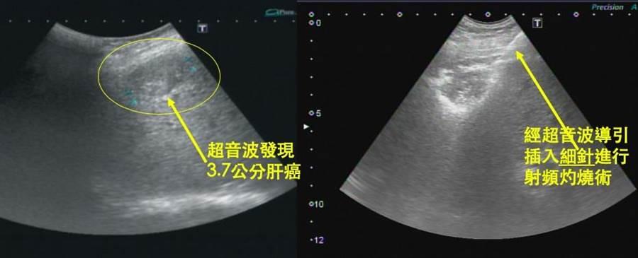 如右圖,電燒療法是插入能產生高溫的特殊細針,可將肝癌細胞燒死。(大千綜合醫院提供/何冠嫻苗栗傳真)