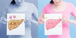 脂肪肝沒當回事 中風、罹癌就遲了