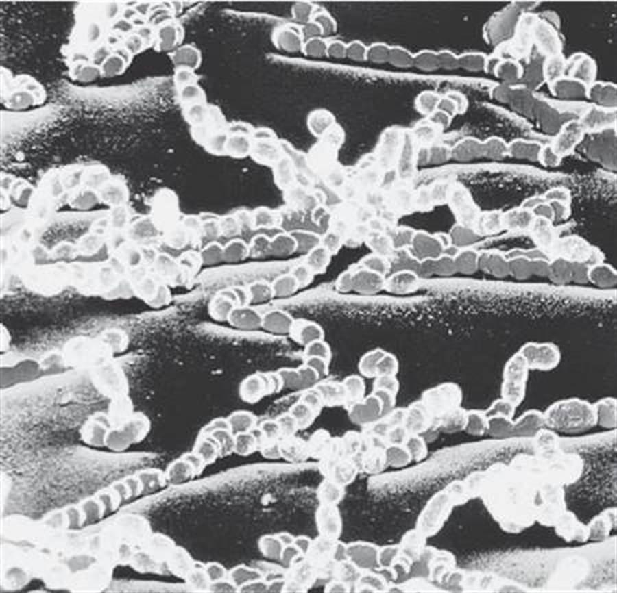顯微鏡下的「屍體顆粒」