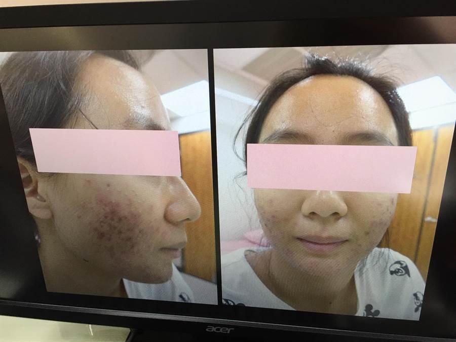 防疫期間,衛福部分旗山醫院皮膚科近來不少患者因為長期帶口罩,臉部出現紅疹向醫師求救。(翻攝照片/林雅惠傳真)