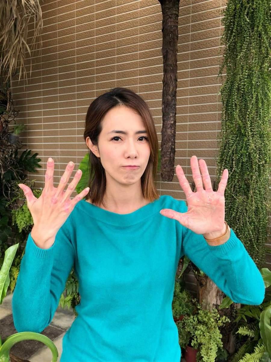 黃瑄衛防疫消毒,導致雙手異位性皮膚炎加劇。(圖/民視提供)