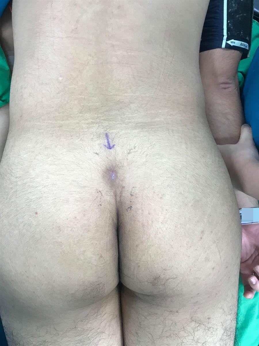 男大生尾椎處出現竇道,是為罕見的「潛毛症」。(亞大醫院提供/林欣儀台中傳真)