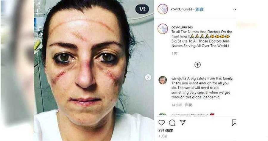 醫護人員長時間配戴護目鏡,臉上滿是勒痕。(圖/翻攝covid_nurses Instagram)