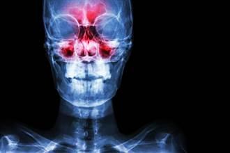 男自歐返國後「嗅覺喪失」 醫驚:鼻腔被塞滿了