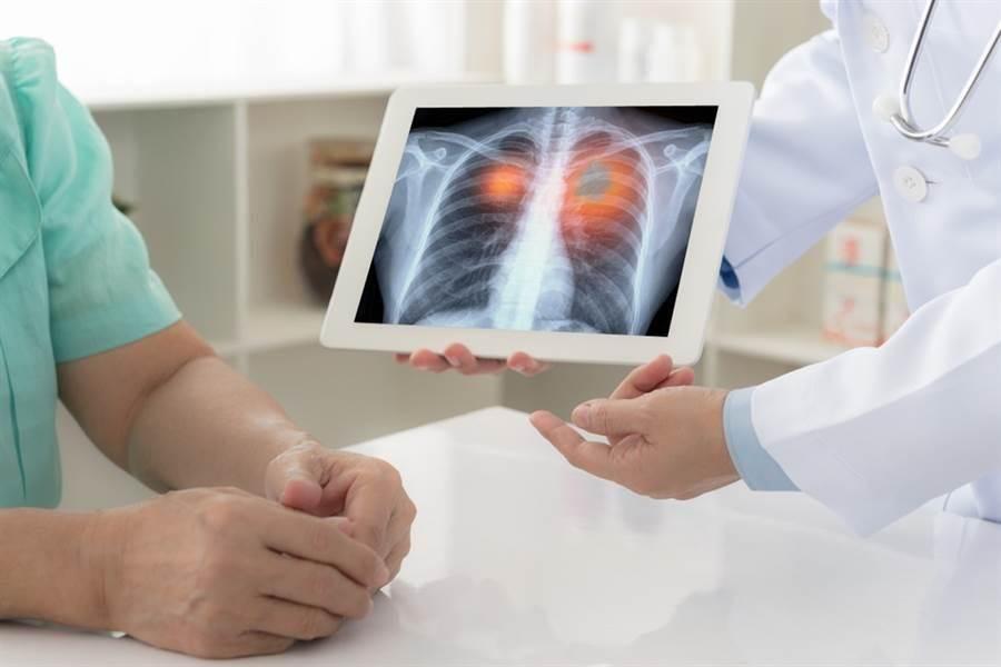 中國流行病學雜誌上的近期研究指出,4種慢性病染新冠肺炎最致命。(圖/達志影像)