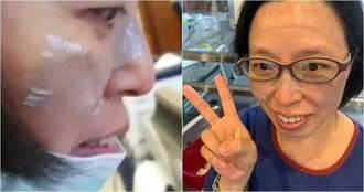 守護生命的印記!醫護口罩戴到臉破皮 急貼人工皮再上