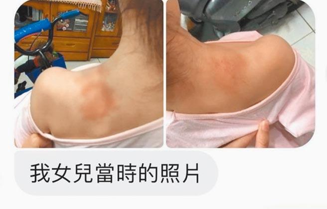 台南市永康區一家托嬰中心傳出不當照顧,另有家長指出自己的女兒也曾因這位女托育員不當照顧,肩膀瘀傷。(翻攝照片/程炳璋台南傳真)