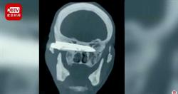 26年前遭搶匪「一刀刺進頭部」…老翁腦內驚藏10公分斷刀