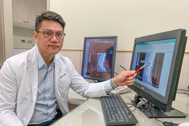 中醫大新竹附設醫院外科主治醫師古君平,確診女大生罹患罕見的「上腸繫膜動脈症候群」。(羅浚濱攝)