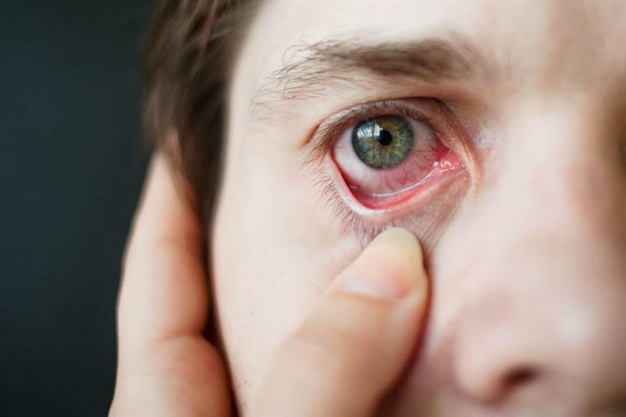 眼球結膜下出血,患者本身可能沒有疼痛感,卻會影響眼睛視力。(達志影像/shutterstock)