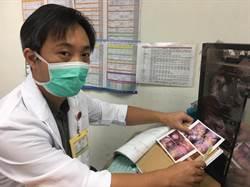 孕婦盲腸炎 腹腔鏡手術切除後順產
