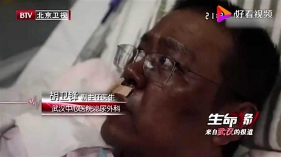 胡衛鋒醫生皮膚變得非常黝黑,帶著眼鏡的他神似WHO秘書長譚德塞。(圖/好看視頻)