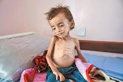聯合國示警 疫情加重糧荒 2.6億人恐挨餓