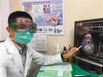 婦人發燒以為是肺炎 檢查竟是致命急症「深頸部感染」