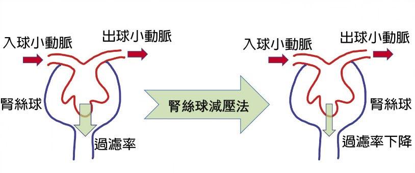 腎絲球減壓法 水能載舟亦能覆舟    ˙圖/新光醫院