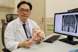 莫名頭暈、視力模糊 恐是腦下垂體腫瘤危害