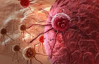不想加速癌細胞成長 日常6件事絕不能偷懶