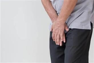 17歲高中生小便疼痛「下面紅腫」!醫驚見一圈「陳年黃垢」:被臭暈