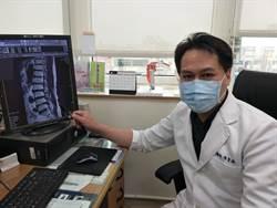 85歲翁右下肢酸麻無力 雙通道內視鏡術除脊椎病灶
