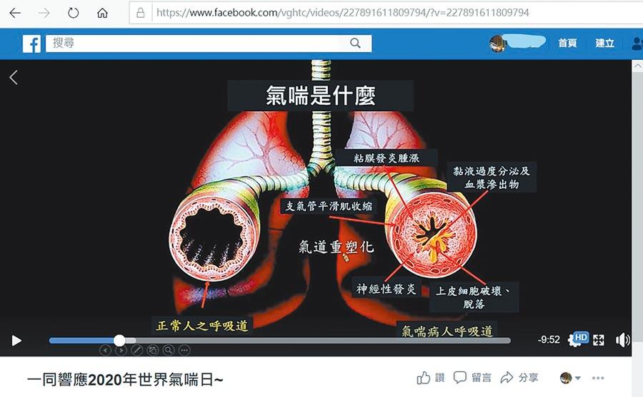 「世界氣喘日」台中榮總「好氣道團隊」錄製各種氣喘衛教影片,置於中榮網站上,提供哮友們參考學習。(台中榮總提供/台中馮惠宜傳真)