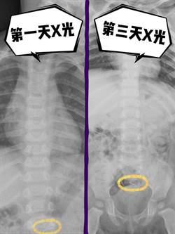 嚴重咳嗽5天 男童胸部X光發現誤吞訂書針