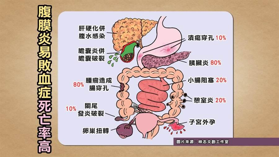 《健康2.0》醫師提醒腹膜炎易造成敗血症。(TVBS提供)
